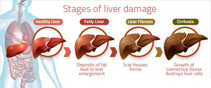Liver Disorder Drugs